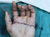 Huế: Nối thành công bàn tay đứt lìa bằng phẫu thuật vi phẫu