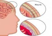 Dấu hiệu nhận biết khi bị viêm màng não
