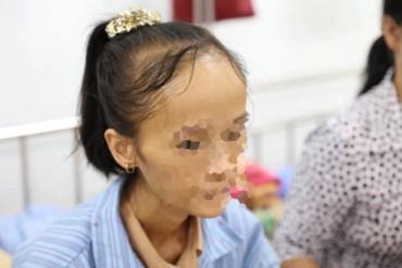 Trầm cảm sau sinh, bà mẹ trẻ sụt 33 kg