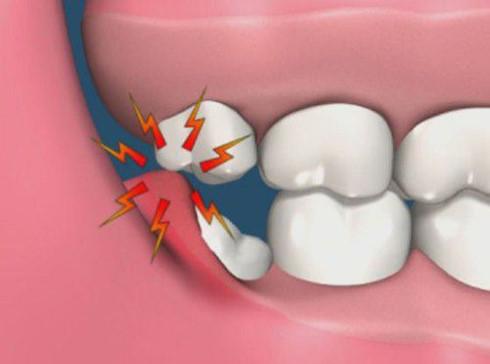 Mất mạng vì răng khôn, nếu xử lý không đúng