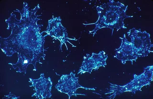 Cách điều trị ung thư mới có thể phá hủy khối u tốt hơn hóa trị và xạ trị