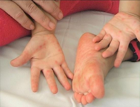 Bộ Y tế yêu cầu khẩn cấp phòng, chống dịch bệnh tay chân miệng