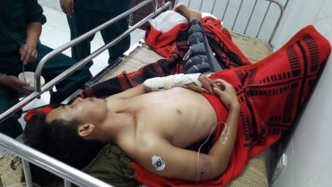 Bệnh xá đảo Song Tử Tây cấp cứu ngư dân tàu cá Bình Định gặp nạn