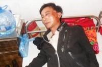 Đắk Lắk: Một tài xế bị côn đồ ném đá làm gãy xương hàm