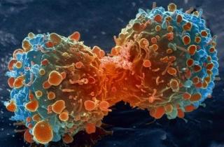 Phòng ngừa bệnh ung thư như thế nào?