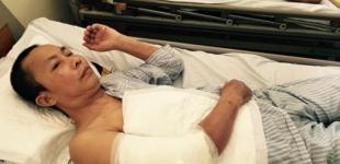 Thối bắp tay vì mũi tiêm giảm đau của bệnh viện