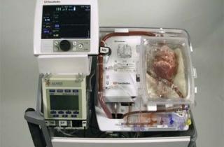 """Lần đầu tiên cấy ghép tim """"chết"""" cho người sống"""
