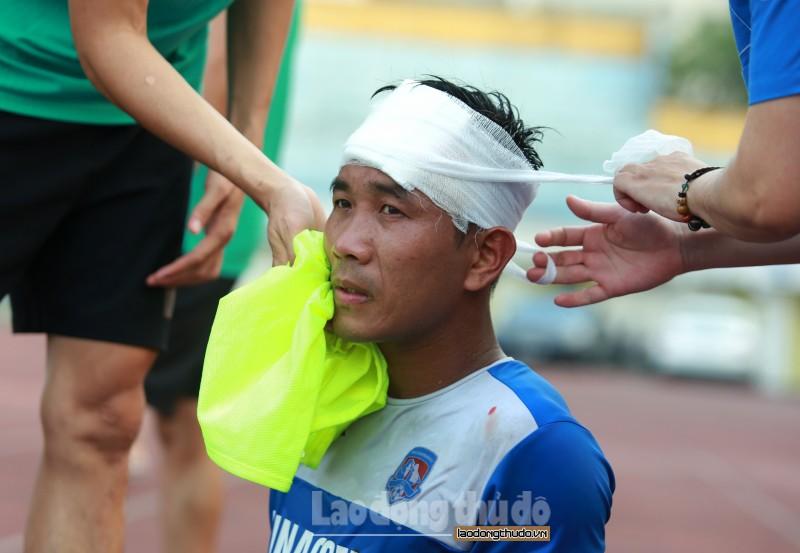 """V-League chưa trở lại, Than Quảng Ninh đã """"bị thương"""" ở cánh trái"""