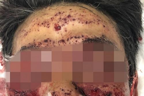 Cấp cứu bệnh nhân nát mặt vì thử pháo tự chế đón Tết