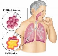 Nấm phổi do Aspergillus: Nhiềuquốc gia không đủ nguồn lực để chẩn đoán và điều trị