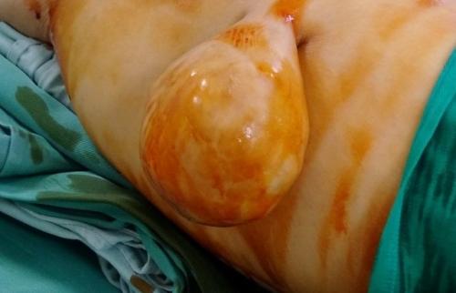 Phẫu thuật cắt bỏ khối u mỡ to bất thường cho nữ bệnh nhân 61 tuổi