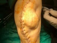 Bệnh viện E: Phẫu thuật thành công cho bệnh nhân khớp gối biến dạng phì đại