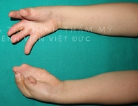 Bệnh viện Hữu nghị Việt Đức: Điều trị thành công hội chứng hẹp hộp sọ phức tạp