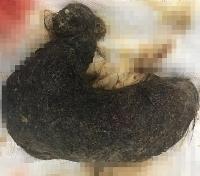 Phẫu thuật lấy khối u tóc khổng lồ trong cơ thể bé gái 11 tuổi