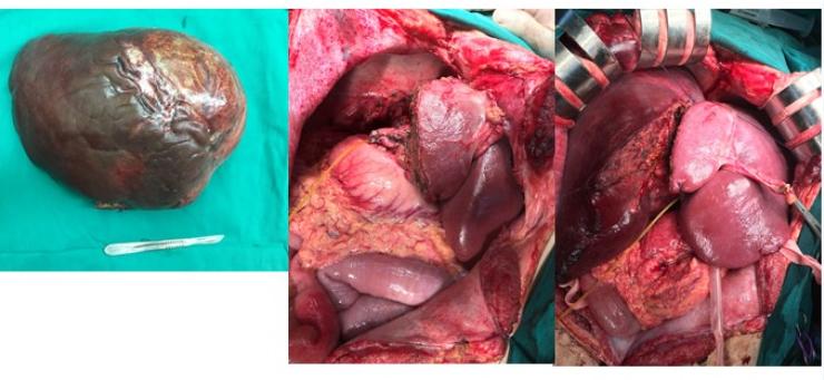 Cắt khối u gan 5kg trên bệnh nhân u cơ mỡ mạch gan