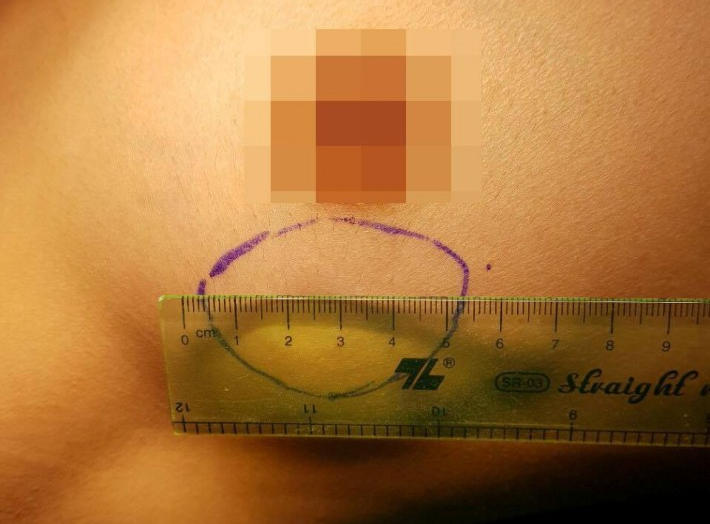 Lần đầu tiên triển khai mổ nội soi trên bệnh nhân u xơ tuyến vú