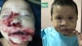 Phẫu thuật tạo hình cho bé trai 2 tuổi bị chó cắn nát mặt