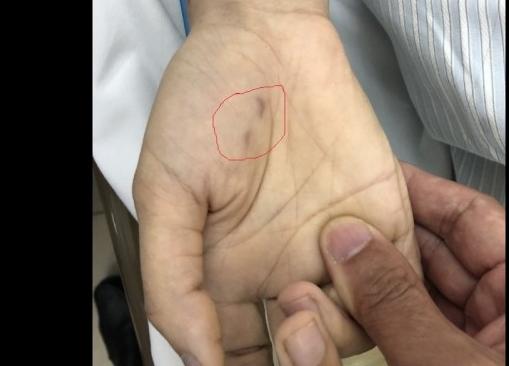 3 tuần 2 bệnh nhân tử vong vì bệnh dại