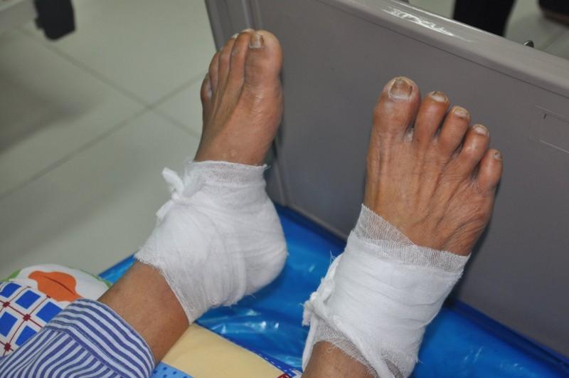 Bệnh nhân đái tháo đường: Bỏng độ 3 do chườm nóng bằng lá ngải cứu