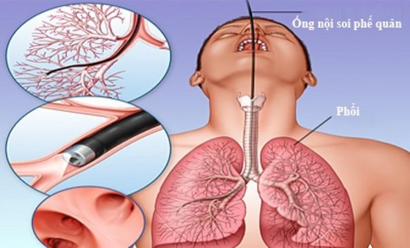 Bệnh nhân tử vong khi nội soi phế quản tại Bệnh viện Bạch Mai