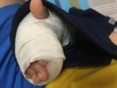 Nối động mạch cổ tay cho bé trai 6 tuổi bị tai nạn sinh hoạt