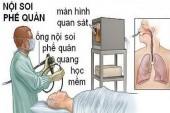Bệnh viện Bạch Mai báo cáo nguyên nhân tử vong của bệnh nhân nội soi phế quản