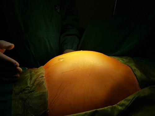 Phẫu thuật loại bỏ u mạc treo ruột khủng nặng 4kg cho bệnh nhân