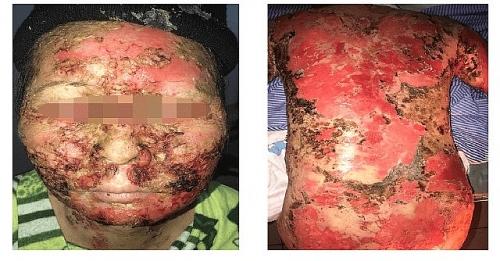 Nữ bệnh nhân bị suy kiệt vì tự tắm lá chữa bệnh