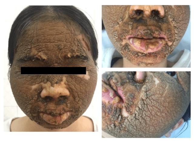 Kinh hoàng khuôn mặt nữ bệnh nhân đóng vảy sần sùi vì bôi thuốc trắng da