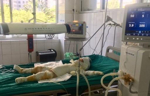 Vụ đốt nhà làm 5 người thương vong tại Sơn La: Các nạn nhân đều bị bỏng trên 50%