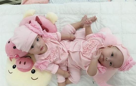 Sáng nay, 100 y bác sĩ tiến hành phẫu thuật tách dính cặp bé gái song sinh hiếm gặp