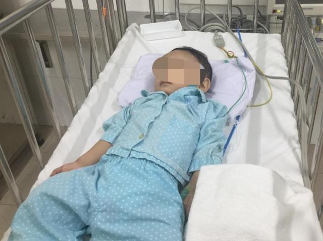 Cháu bé hơn 1 tuổi bị bạo hành chấn thương sọ não được xuất viện