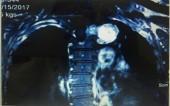 Phẫu thuật thành công khối u thần kinh tủy sống