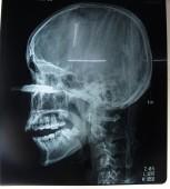 Nam thanh niên bị lưỡi cưa găm sâu vào mặt