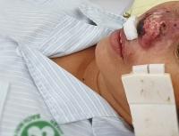 Xuất hiện bệnh nhân mắc vi khuẩn whitmore 'ăn' cánh mũi