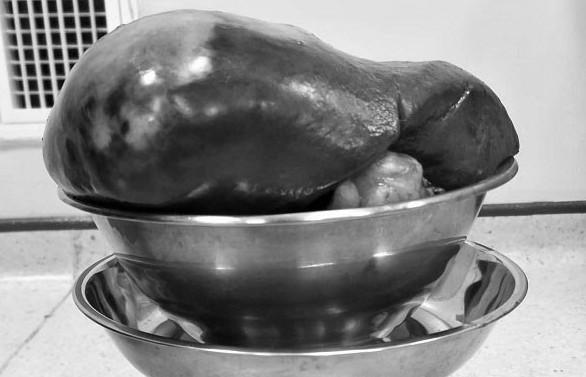 Hy hữu bệnh nhân có khối u lách nặng 2,3kg