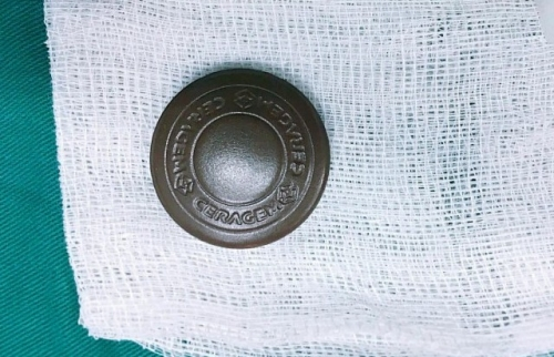 Nữ bệnh nhân bị hóc dị vật do ngậm đá nano
