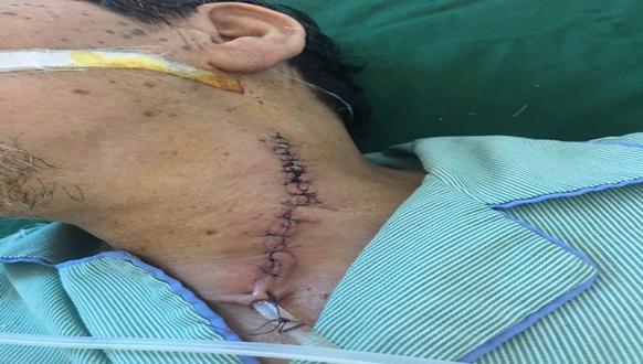 Phẫu thuật thành công ổ áp- xe quanh amidan cho nam bệnh nhân lớn tuổi