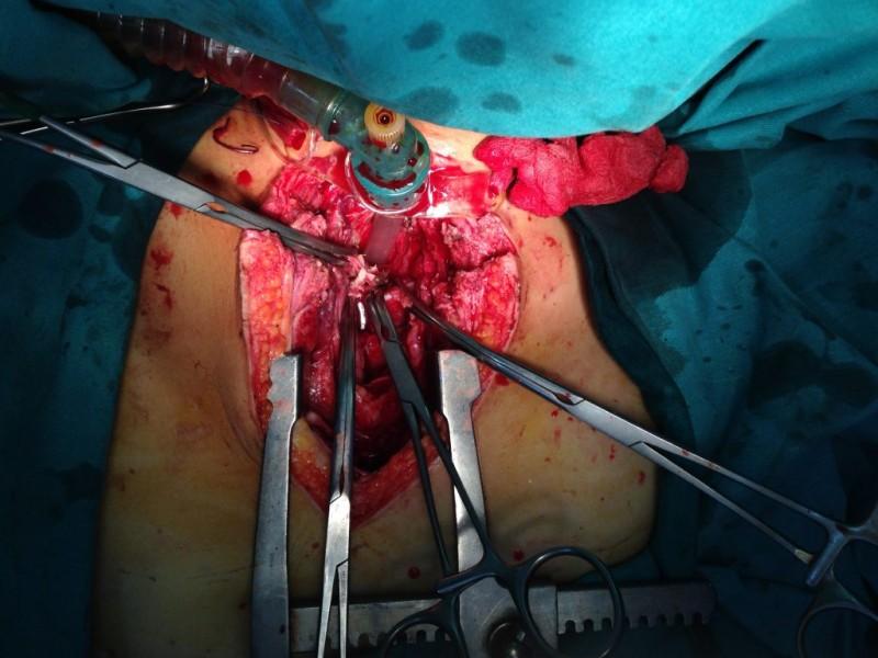 Cứu sống bệnh nhân tổn thương động mạch cảnh sau mở khí quản