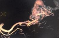 Phẫu thuật cứu sống bệnh nhân bị dị dạng mạch máu não