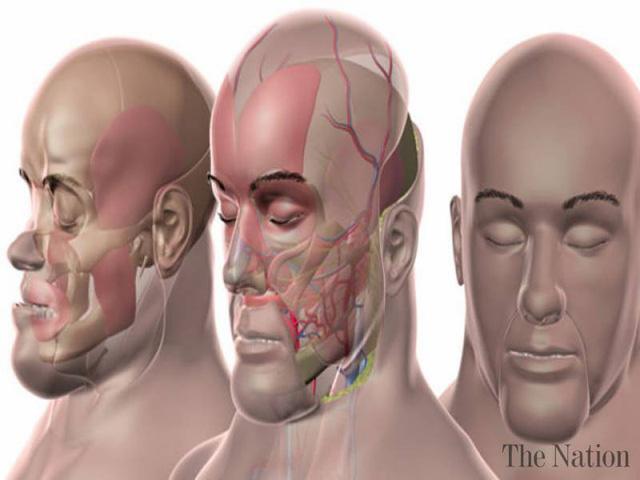 Lần đầu tiên trên thế giới thực hiện ghép mặt lại lần 2