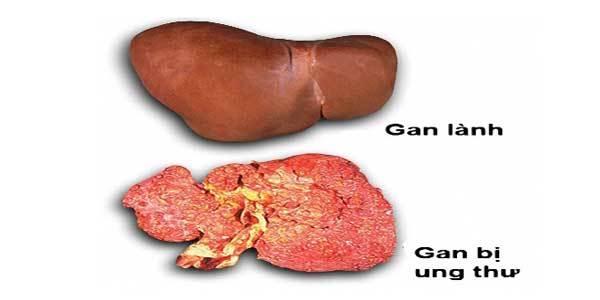 Triệu chứng '2 giảm, 2 đau' trên cơ thể, báo hiệu ung thư gan tới gần