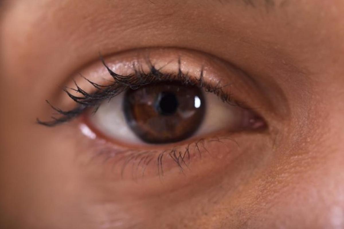 Gỉ mắt không trong suốt: Gỉ mắt không trong suốt mà có màu vàng, xanh hoặc trắng đục có thể là dấu hiệu của một dạng nhiễm khuẩn mắt, ví dụ như đau mắt đỏ. Trong trường hợp này, bạn có thể thấy mắt ngứa ngáy và có màu đỏ máu.