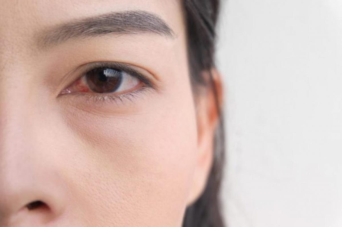 Khó mở mắt: Nếu vào buổi sáng thức dậy, bạn cảm thấy khó khăn trong việc mở mắt, không phải do ngái ngủ mà do hai mí mắt như bị dính vào nhau, đó có thể là dấu hiệu của một dạng nhiễm khuẩn mắt ví dụ như đau mắt đỏ./.