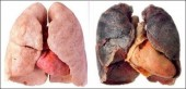 Nicotin trong thuốc lá có phải thủ phạm gây ung thư?