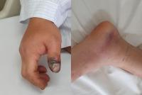 8 người bị rắn cắn, bác sĩ chỉ ra sai lầm khi sơ cứu nhiều người mắc