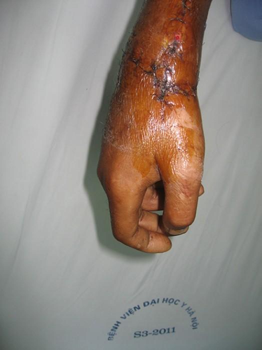 Nối thành công bàn tay bị đứt rời cho bệnh nhân