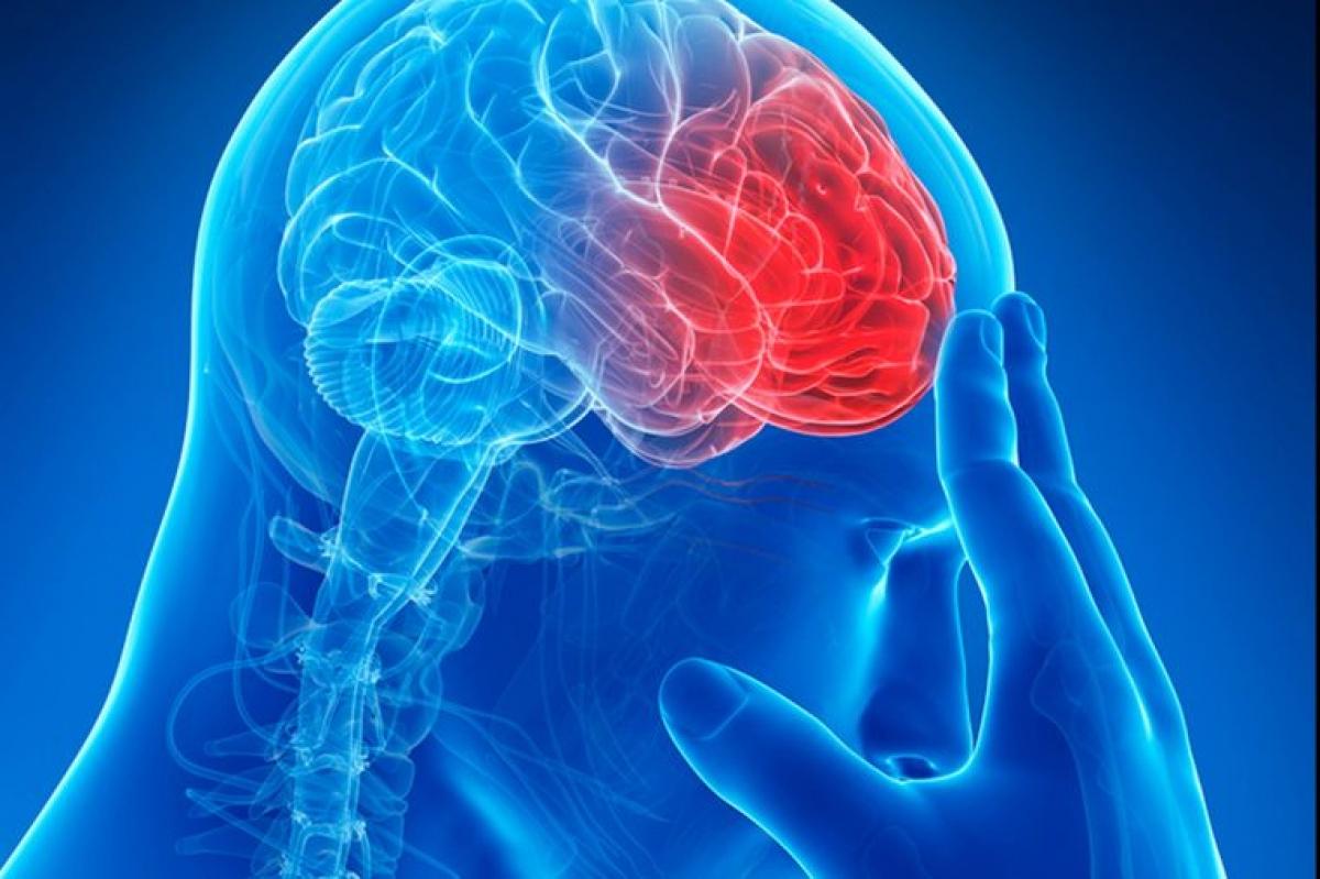 Nguy cơ đột quỵ: Những người thuộc nhóm máu AB dễ gặp các vấn đề về tim mạch như đột quỵ hơn, trong khi những người thuộc nhóm máu O có nguy cơ thấp nhất.