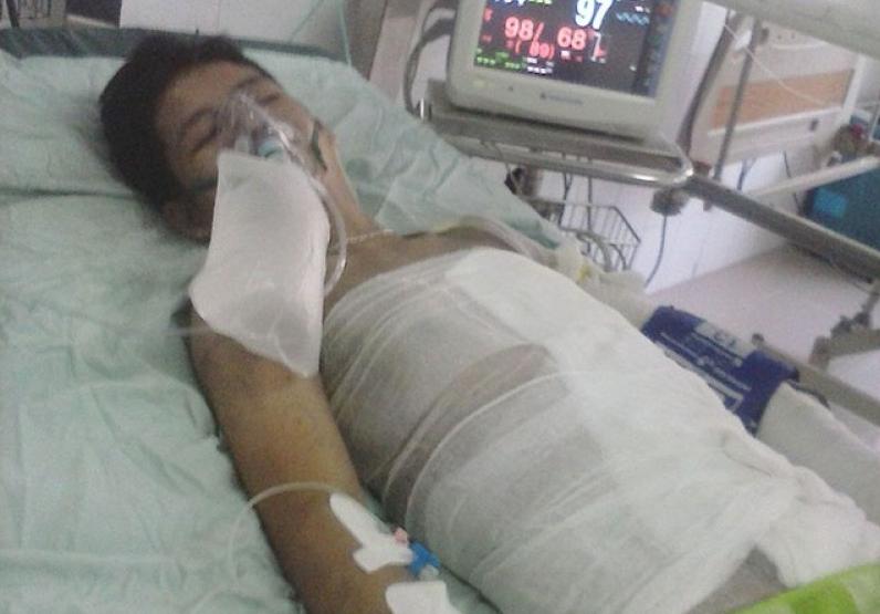 Xót xa gia cảnh 2 nạn nhân bị bỏng nặng