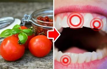 10 thực phẩm gây hại cho răng hàng đầu cần tránh